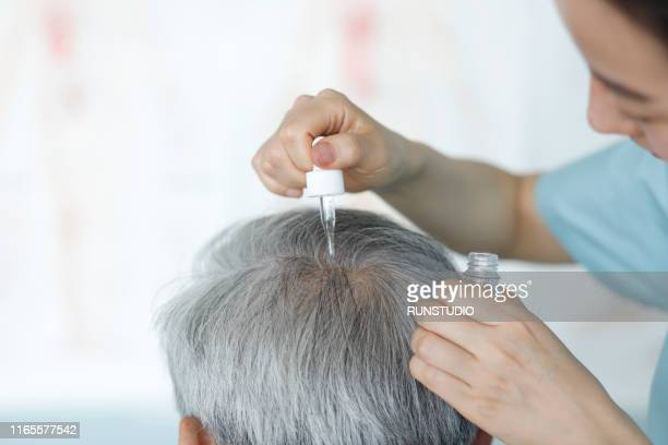 doctor giving treatment serum on scalp - hair loss stock pictures, royalty-free photos & images