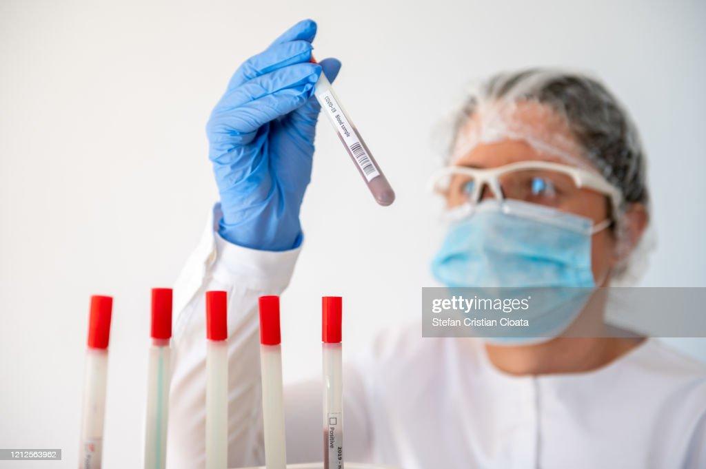 Doctor holding Coronavirus test tube : Stockfoto