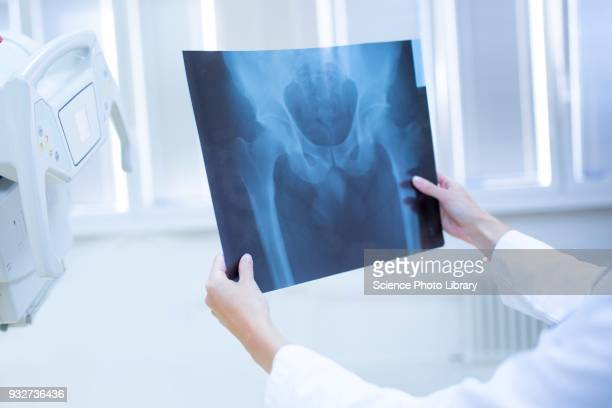 Doctor holding x-ray of a human pelvis