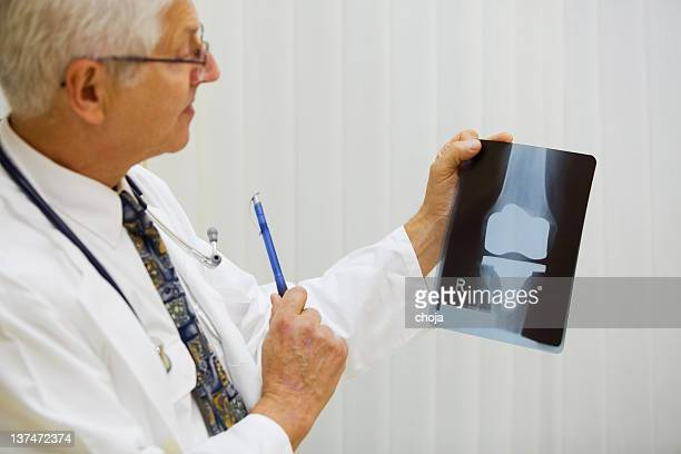 Doctor is examining X-ray image of artificial knee