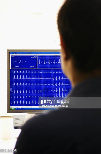 Doctor looking at computer screen reading out Exercise Stress Test, Patient undergoes Exercise Stress Test on treadmill while hooked up to equipment...
