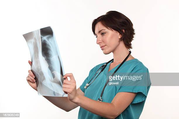 Doctor looking at lungs X-ray