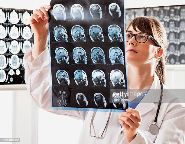 Doctor looking at mri x-rays in clinic