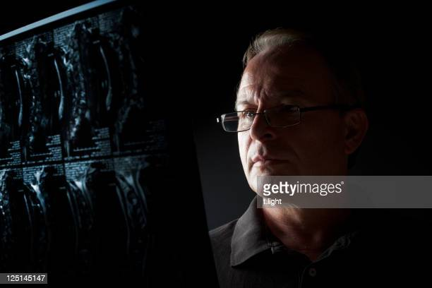 Doctor looking MRI