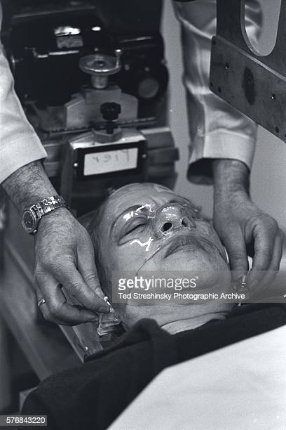 A doctor measures the relative bone size of a patient with Acromegaly a disease that causes swelling of the bones and joints in the head San...