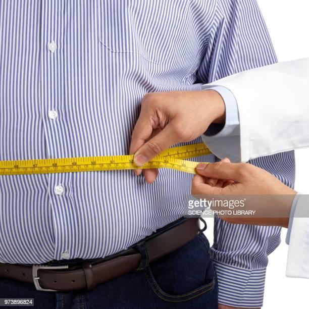 doctor measuring man's waist - grasse foto e immagini stock