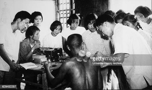 Doctor Performing Acupuncture and Utilizing Bamboo Suction Tubes while Students Watch Malu People's Commune Shanghai China 1965