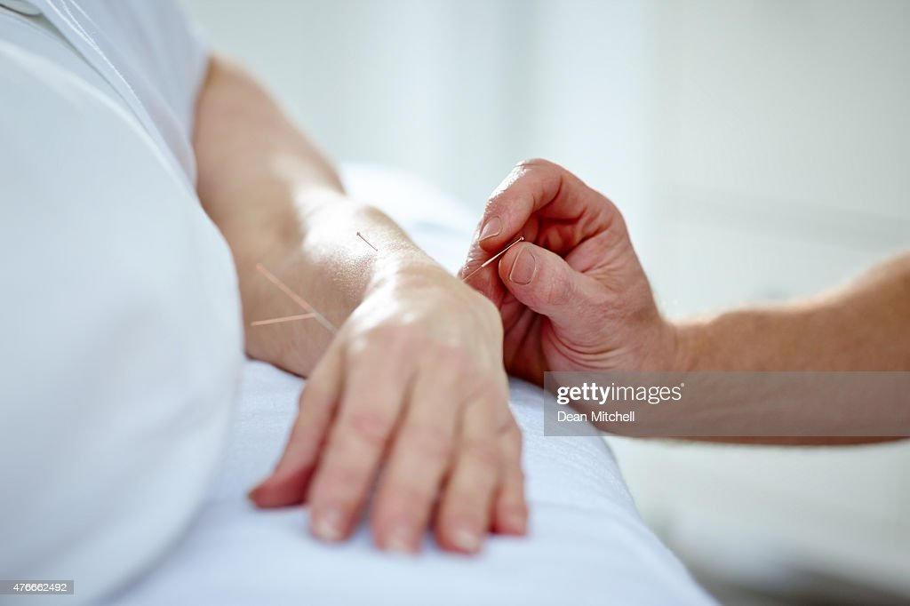 Doctor Performing Acupuncture On A Patients Hand High-Res ...