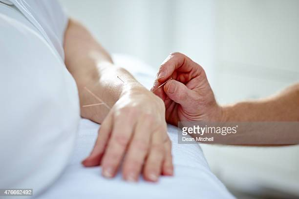 doctor performing acupuncture on a patients hand - acupuncture needle stock pictures, royalty-free photos & images