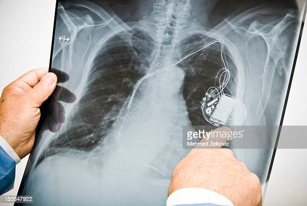 Doctor pointing at pacemaker on chest x-ray