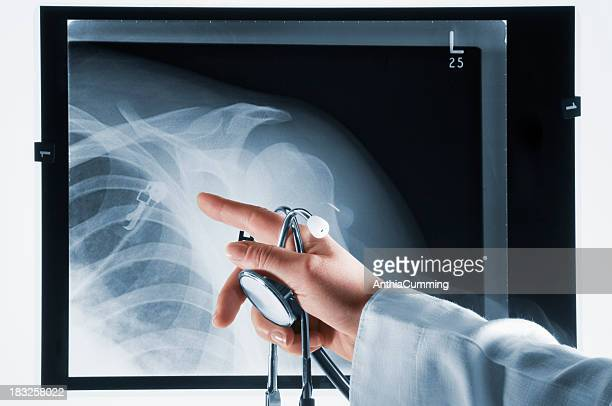 doctor pointing at xray with stethoscope in hand - clavicle stock photos and pictures