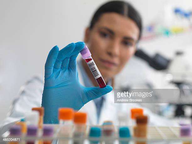 Doctor preparing to view blood sample under microscope in laboratory for medical testing