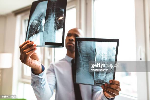 doctor reading the x-ray in the office - medical x ray stock pictures, royalty-free photos & images