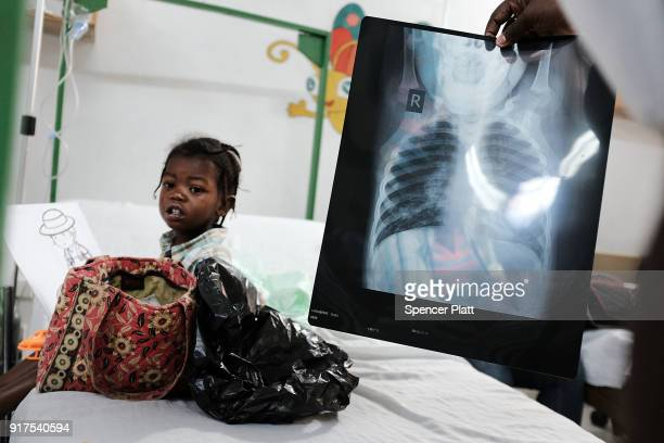 A doctor reads a child's xray at the Martissant hospital in PortauPrince which is operated by Medecins Sans Frontieres/Doctors Without Borders on...