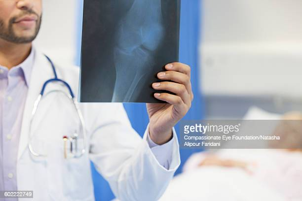 Doctor reviewing patient x ray in hospital