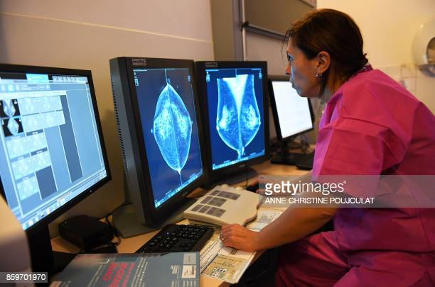 Doctor Rim Villard looks at the results of a breast ultrasound on October 9 2017 at the PaoliCalmette institute a fight against cancer regional...