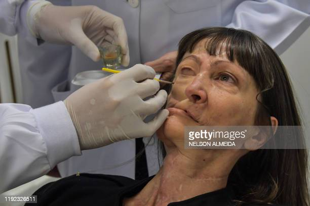 Doctor Rodrigo Salazar-Gamarra places a digitally-engineered prosthesis on Denise Vicentin, a woman who lost her right eye and part of her jaw to...