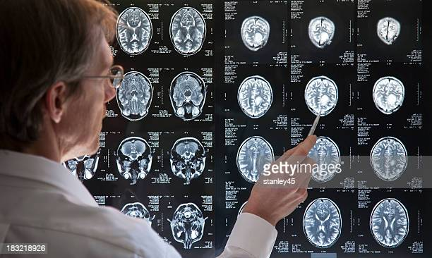 Doctor studying an MRI scan of the Brain