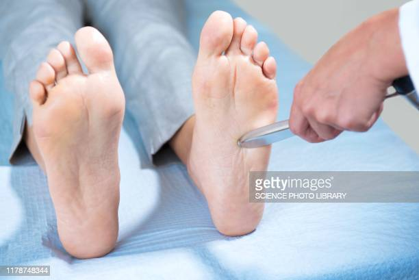 doctor testing patient's plantar reflex - human nervous system stock pictures, royalty-free photos & images
