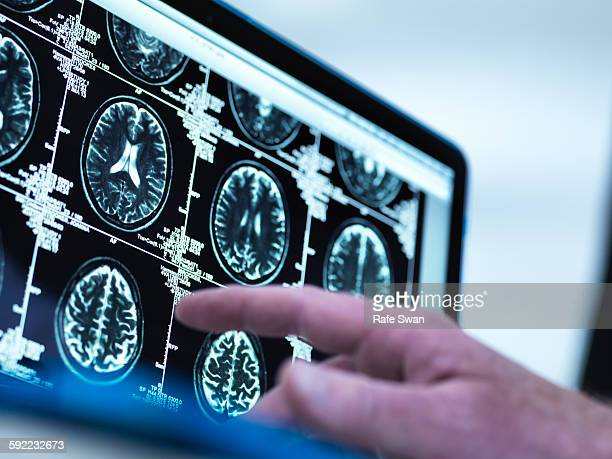 Doctor viewing a series of MRI (Magnetic Resonance Imaging) brain scans on a screen