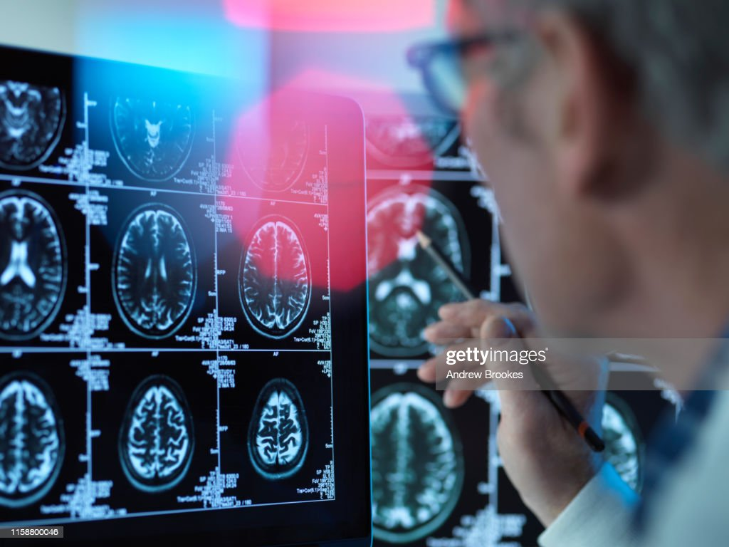 Doctor viewing brain scans for possible disease or damage in clinic : Stock Photo