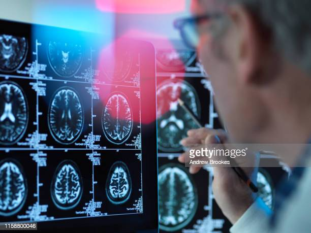 doctor viewing brain scans for possible disease or damage in clinic - アルツハイマー病 ストックフォトと画像