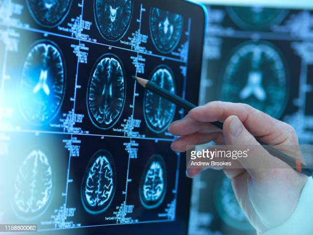 doctor viewing brain scans for possible disease or damage in clinic - human nervous system stock pictures, royalty-free photos & images