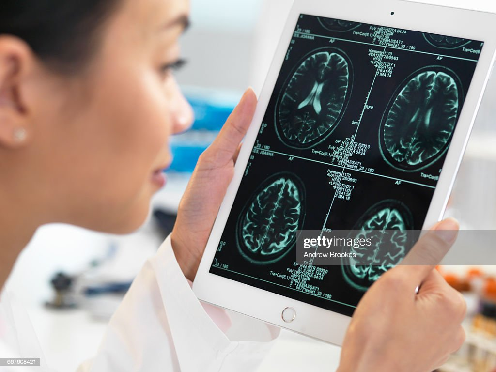 Doctor viewing CT scan result of brain on digital tablet for abnormalities : Stock Photo