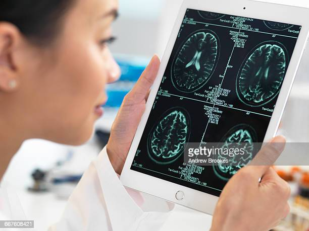 doctor viewing ct scan result of brain on digital tablet for abnormalities - medical x ray stock pictures, royalty-free photos & images