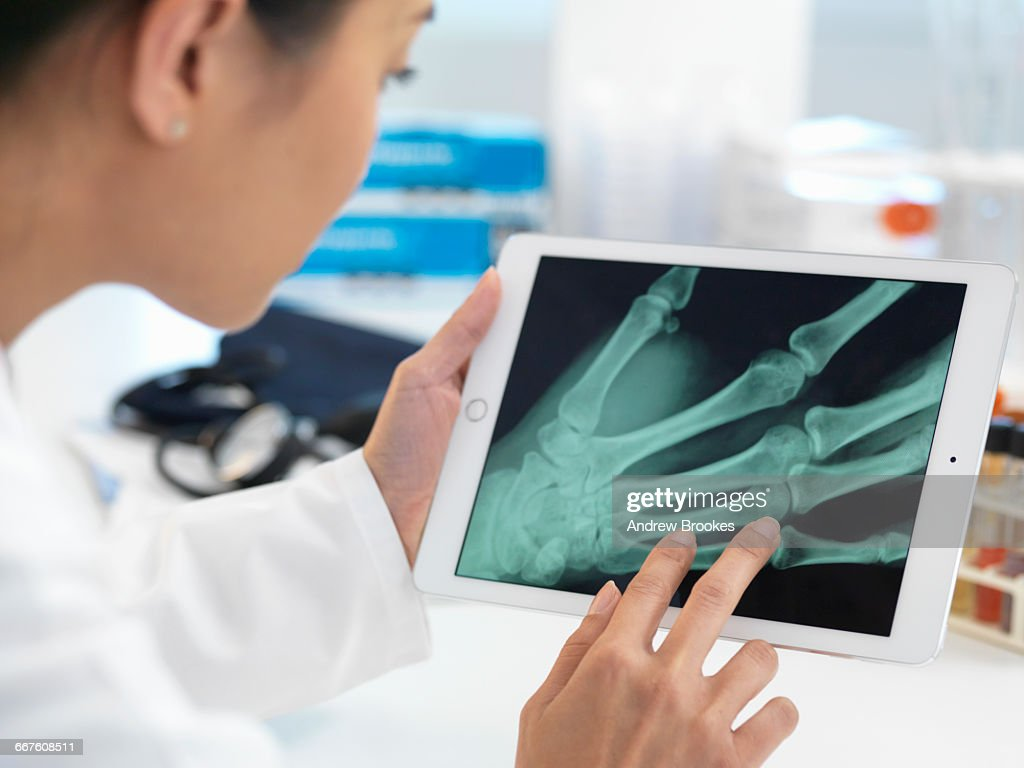 Doctor viewing X-ray of hand on digital tablet : Stock Photo