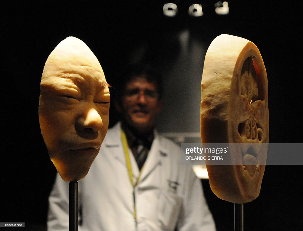 A doctor visits \'Body Worlds\', the anatomical exhibition of real ...