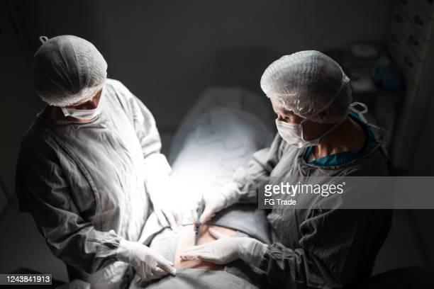 médicos haciendo una cirugía en quirófano en el hospital - liposuccion fotografías e imágenes de stock
