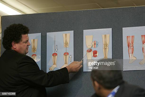 Severed Leg Stock Photos and Pictures | Getty Images