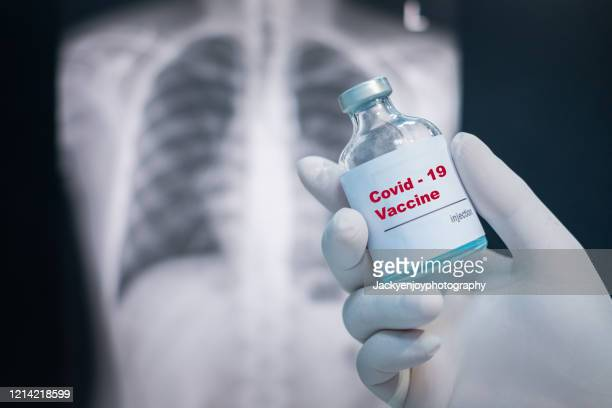 doctor's hand holding a covid-19 vaccine vial on chest x-ray background - coronavirus vaccine stock pictures, royalty-free photos & images