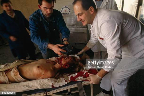 Doctors help a wounded woman carrying her on a stretcher in Kosevo Hospital in Sarajevo She was injured during the siege of the city in the...