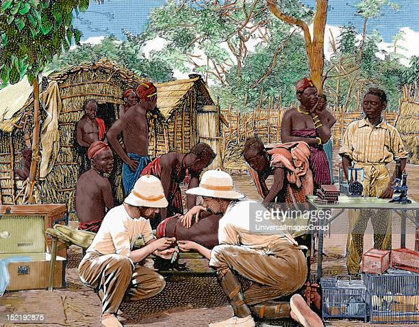 AFRICA Doctors in an expedition of European explorers examining the native blood attacked by sleeping sickness Engraving by Thiriat Colored