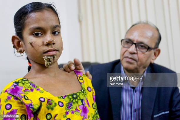 Doctors in Bangladesh will form a medical board to assess a 10yearold girl with barklike warts growing out of her face believed to be treeman...