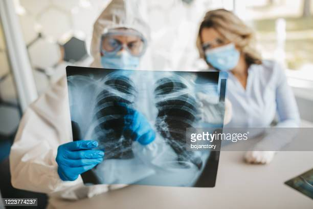 doctors looking at lungs x-ray - lung stock pictures, royalty-free photos & images