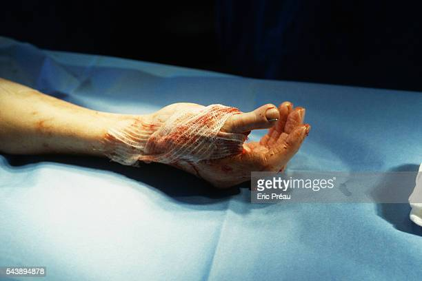 Doctors Vladimir Mitz and Raymond Vilain work with their teams at the Boucicaut Hospital to reconstruct a hand by attaching a toe in the place of a...