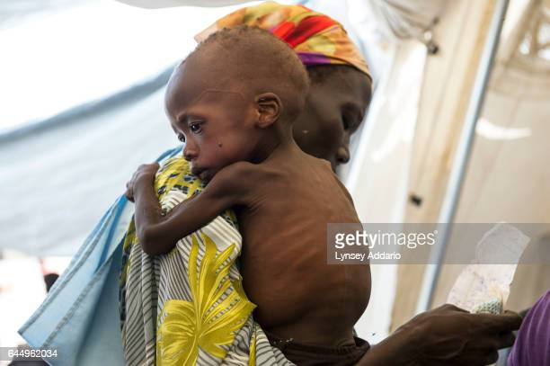 Doctors Without Borders screens and treats malnourished children living in and around Wau Shiluk, who were internally displaced from Malakal, during...