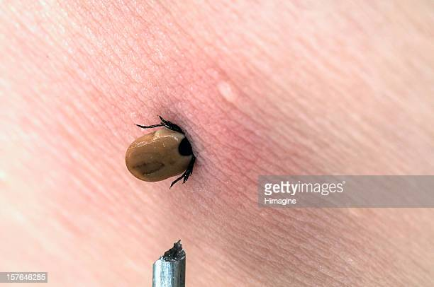 dog tick in human skin - arthropod stock pictures, royalty-free photos & images
