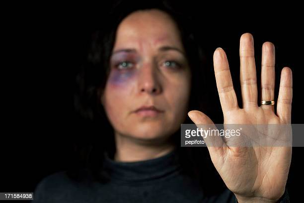 domestic violence victim - violence stock photos and pictures