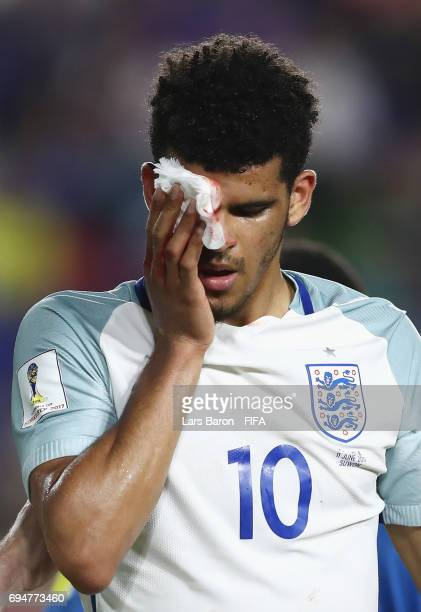 Dominic Solanke of England is injured during the FIFA U20 World Cup Korea Republic 2017 Final between Venezuela and England at Suwon World Cup...