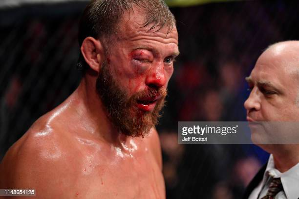 Donald Cerrone reacts after doctors call off his lightweight bout against Tony Ferguson during the UFC 238 event at the United Center on June 8 2019...