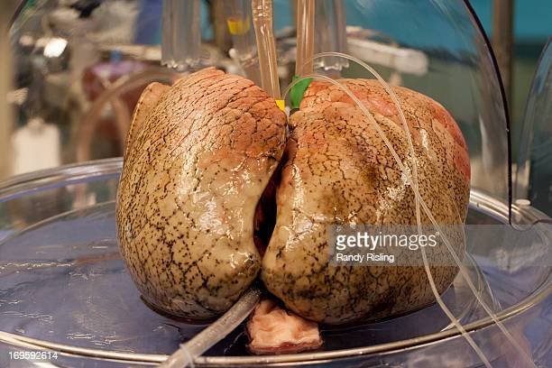 Donor lungs are connected to an XVIVO lung perfusion machine at Toronto General Hospital in preparation for a potential doublelung transplant The...