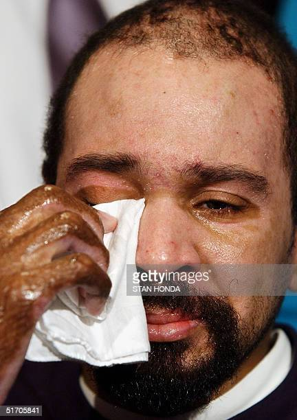 Donovan Cowan the last of the severely injured victims from the World Trade Center 11 September attack wipes tears from his eyes at a press...