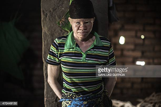 Dorothy Mausen a 22yearold Malawian albino woman looking on at her home in the traditional authority area of Nkole Machinga district on April 17 2015...