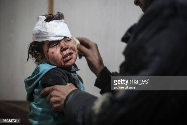 dpatop A Syrian boy receives first aid in a makeshift hospital after he was injured during air strikes by forces loyal to Syrian President Assad in...