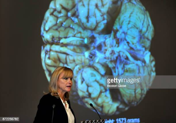 Dr Ann McKee announces her findings on her examination of the brain of former New England Patriots player and convicted killer Aaron Hernandez during...