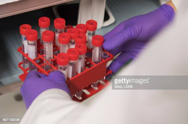 Dr Benjamin Jin a biologist working on immunotherapy for HPV cancers holds test tubes as he works in the lab of Dr Christian Hinrichs an investigator...